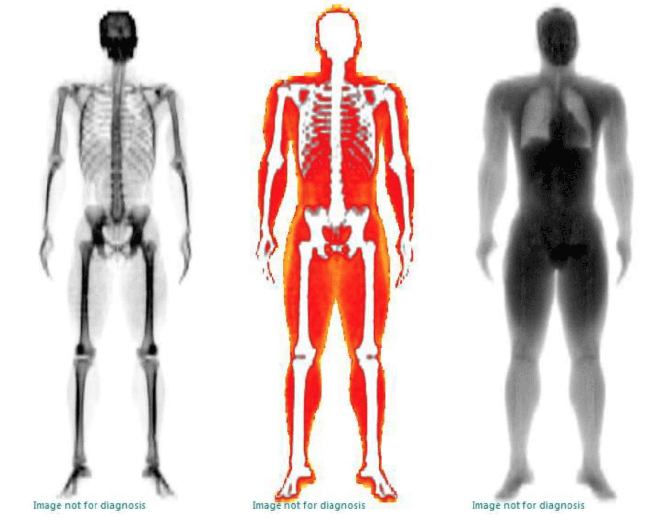 DEXA body composition